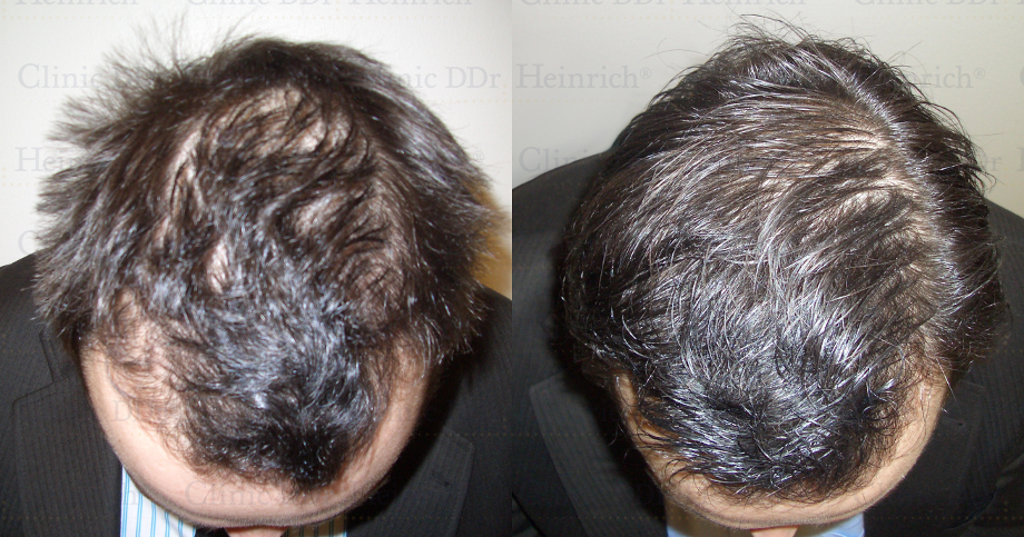 Cell Therapy Hair Growth Hair Growth Therapy With