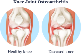 Stem Cell Therapy For Osteoarthritis Joint Problems And